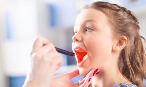 Tonsillite PFAPA: cos'è, sintomi e come si cura