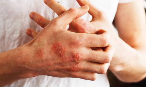 Psoriasi, identificati i fattori di rischio scatenanti